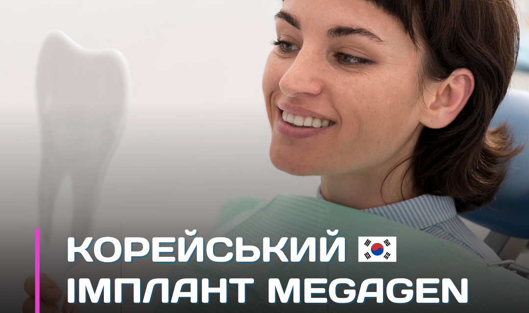 https://este-line.ua/wp-content/uploads/2021/07/akcziya-profesijna-chistka-zubiv-air-flow-900-grn.-kopiya-19-1080x640.png